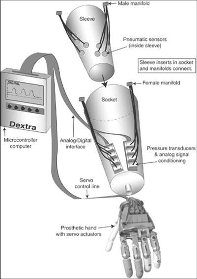 Schematic of an Artificial Limb